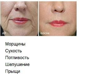 Омоложение Лица и Избавление от Морщин - Смоленск